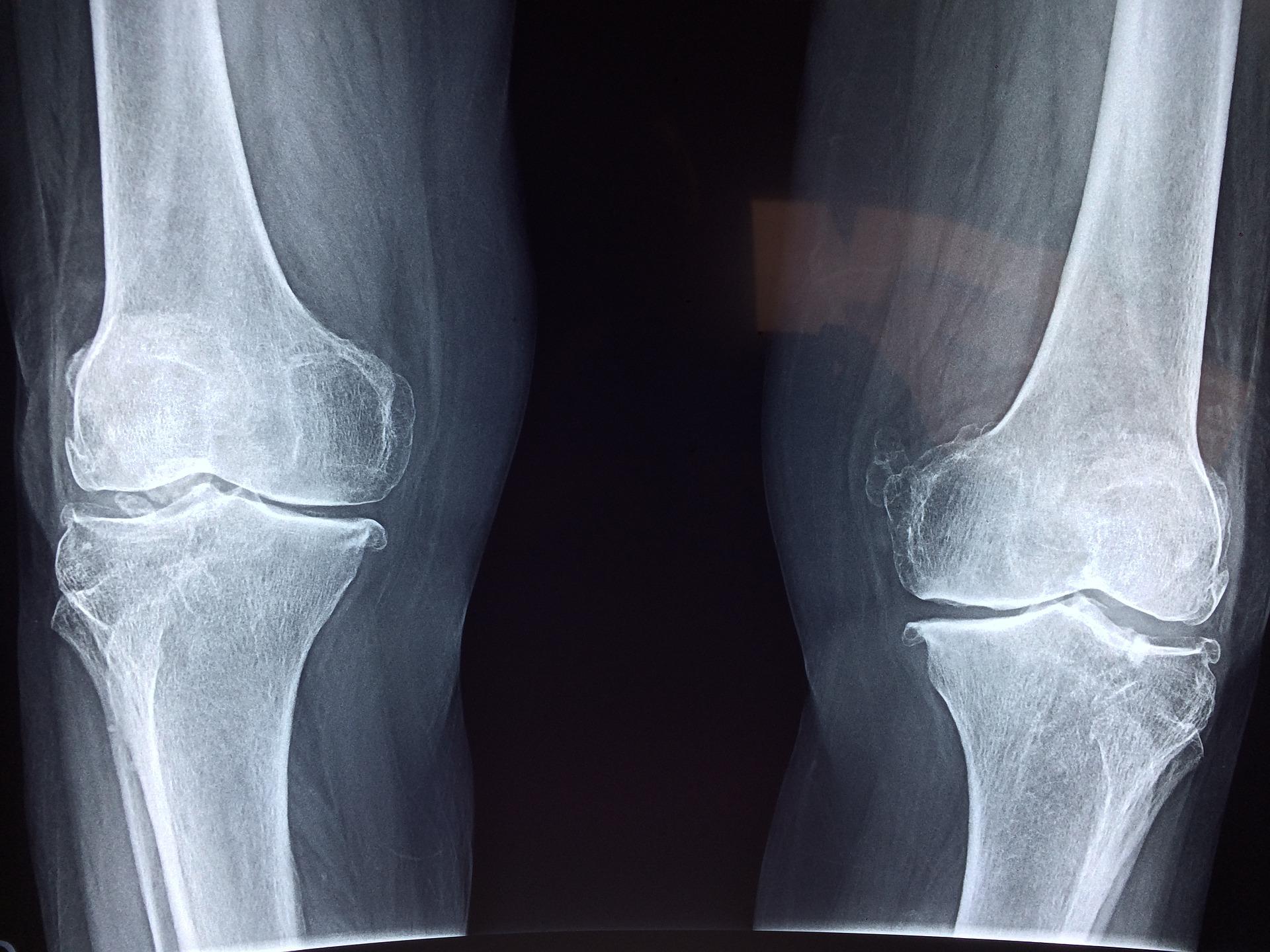 Una nueva técnica en la cirugía de rodilla – el 'Menisco Artificial'.