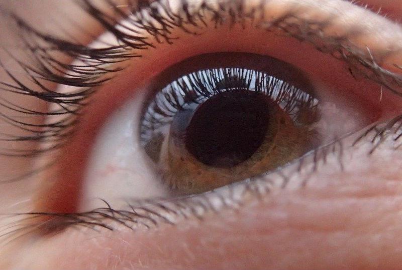 Glaucoma: el ladrón silencioso de la vista
