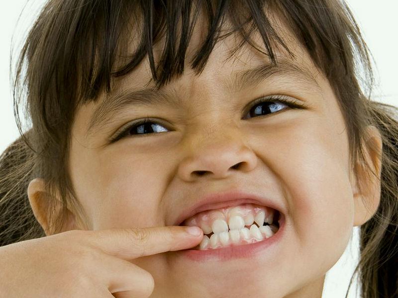 Bruxismo en niños ocasiona déficit de atención y reflujo gastroesofágico