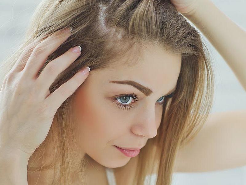Combate la caída del cabello identificando las señales a tiempo