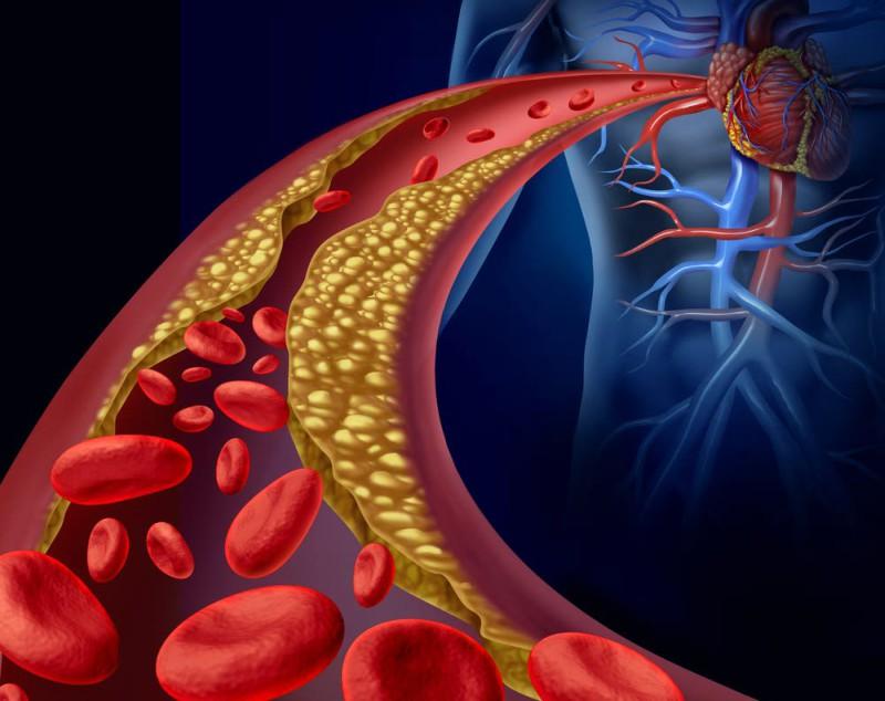 Aterosclerosis es la principal causa de enfermedad cardiovascular