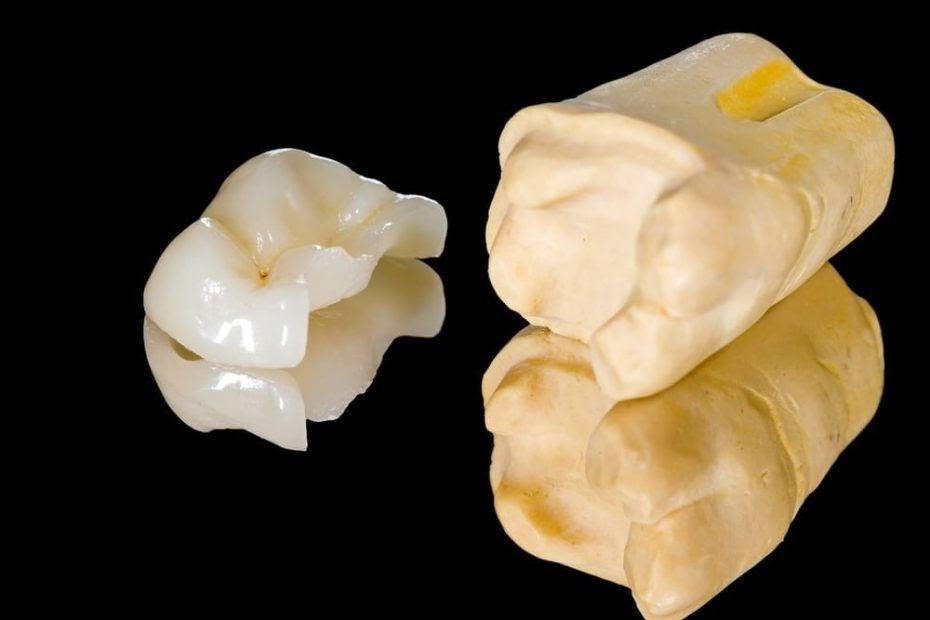 Incrustaciones dentales, un tipo de restauración indirecta de gran eficacia
