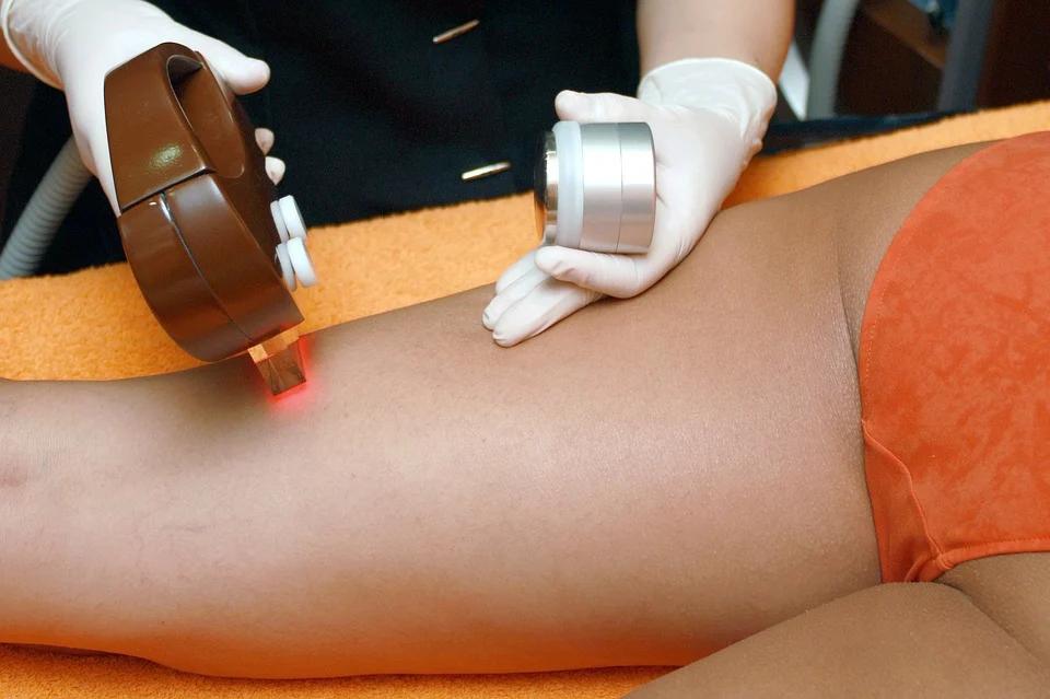 Beneficios de la depilación láser definitiva