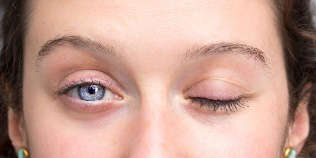 Todo cuanto debemos conocer acerca de la parálisis facial