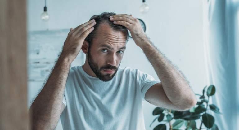 Recomendaciones en caso de alopecia androgénica masculina