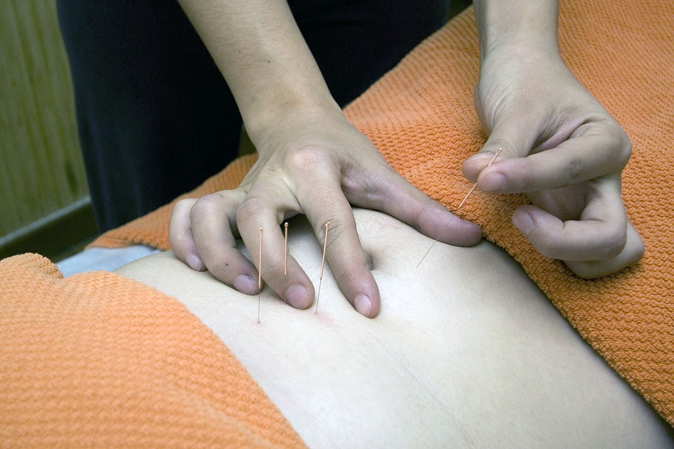 Cada vez más estudios demuestran que la acupuntura es más que una terapia alternativa