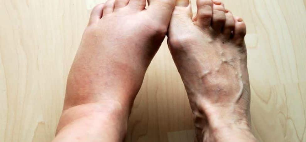 Alertas y consejos si sufres de pies hinchados