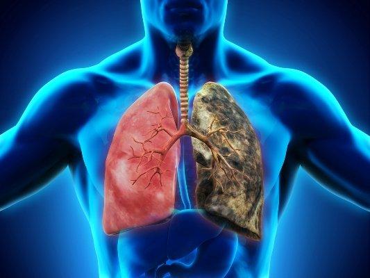 El tabaco y otrostóxicos, capacesde favorecer la EPID
