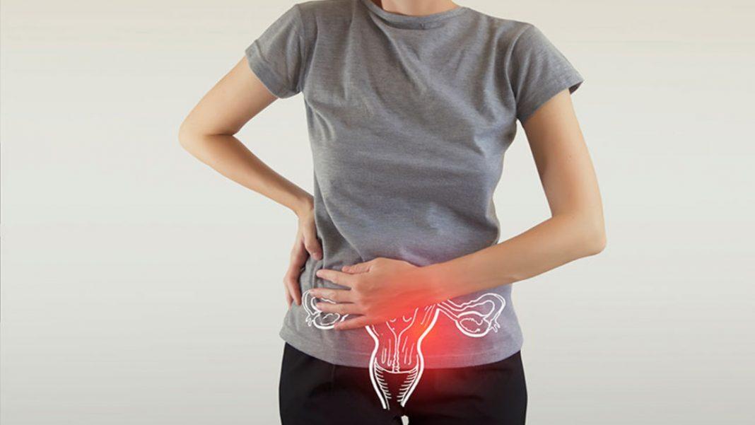 Alerta con dolores pélvicos y el cáncer de ovario