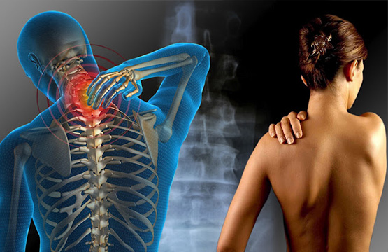 Fibromialgia: por qué aparece y su tratamiento