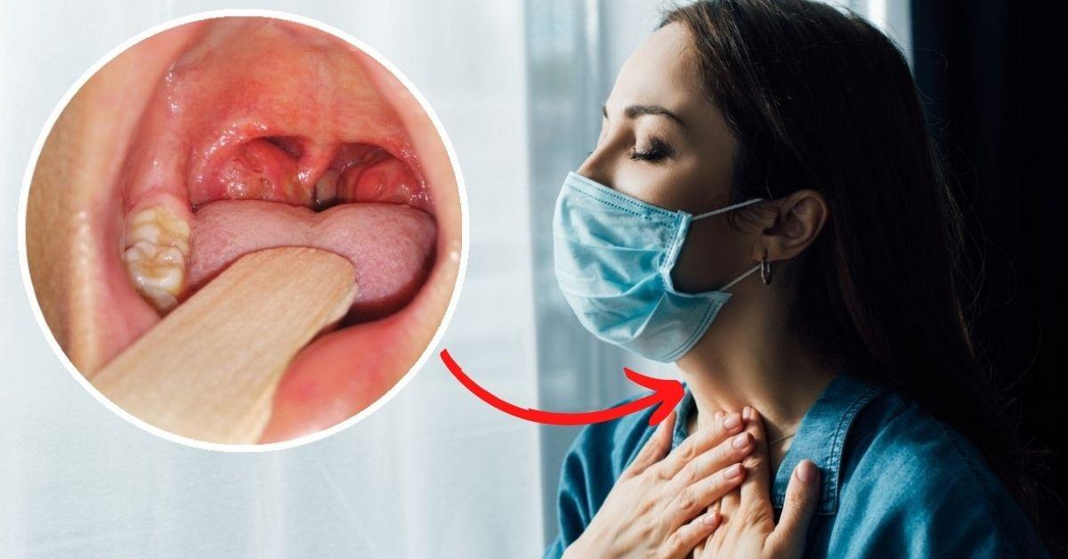 Cuidados a seguir para el tratamiento de una amigdalitis