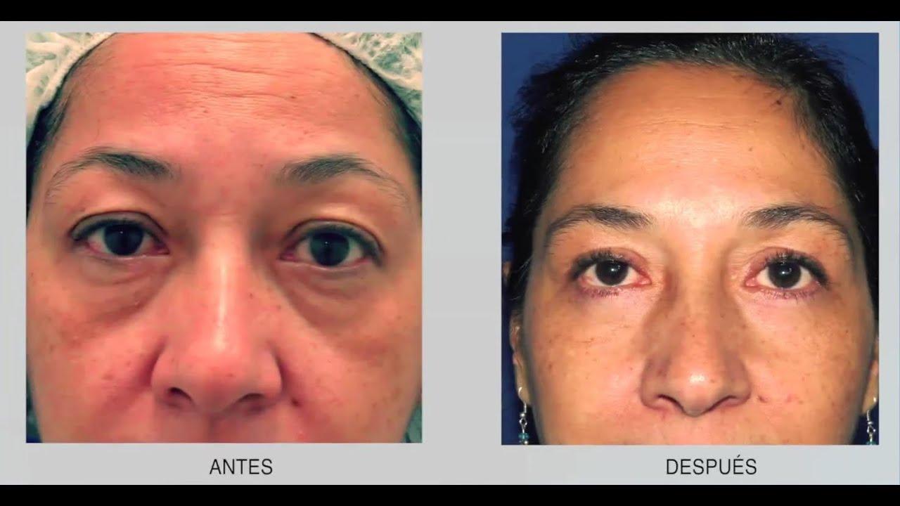 Con la cantoplastia se corrigen detalles estéticos del rostro