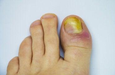 Tips para combatir los hongos en uñas de los pies