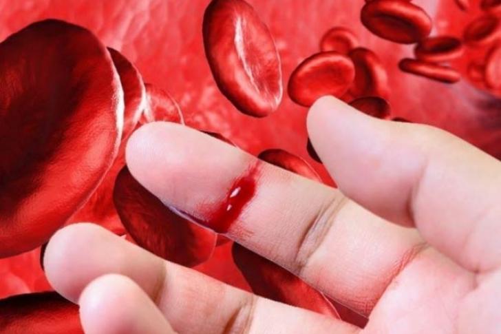 La hemofilia:  ¿Cómo de grave es esta enfermedad?